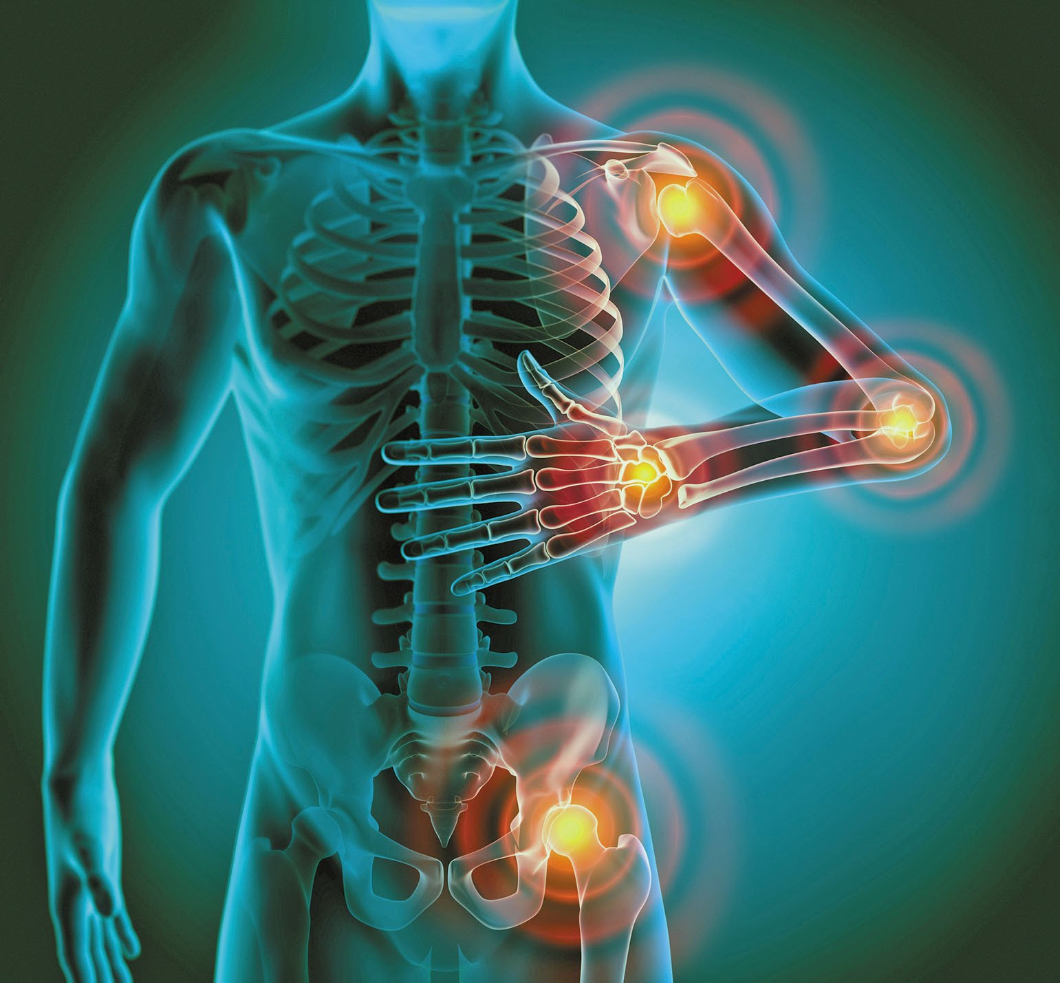 What Is Chronic Inflammation? What are infections that can trigger it?